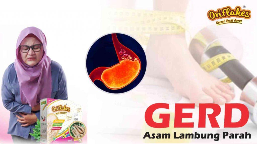 Gerd Asam Lambung Parah